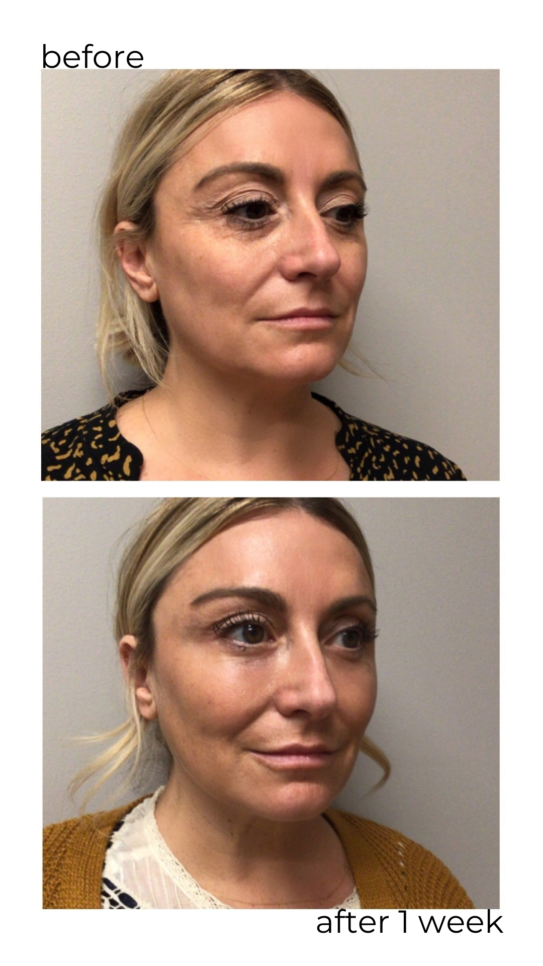 cosmetic procedure before and after